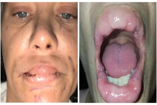 Πήγε να φουσκώσει τα χείλη της με σιλικόνη αλλά κάτι δεν πήγε καλά…Όταν δείτε το αποτέλεσμα θα φρίξετε! – Sex
